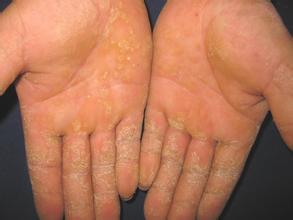 牛皮癣疾病会对手部造成危害吗