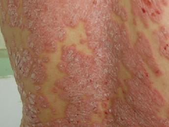 关节炎型银屑病的诱发原因